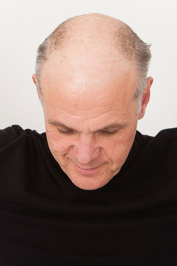 Non surgical hair replacement gallery